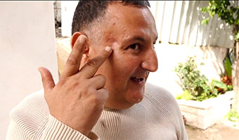 the-man-with-a-rod-in-his-skull-thumb